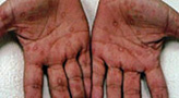 Primary Syphilis Rash SCREENING, DIAG...